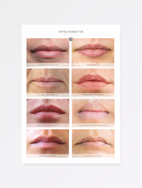 типы кожи губ