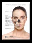 """Плакат """"Строение лицевой кости черепа"""""""